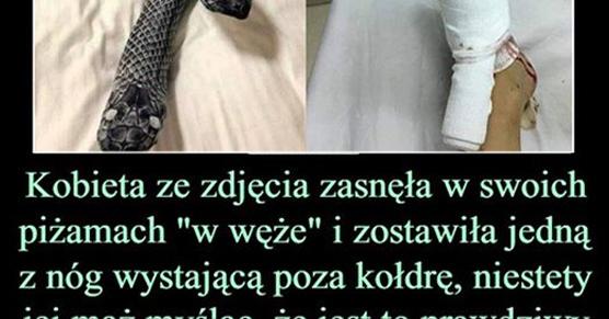Kobieta ze zdjęcia poniżej zasnęła w swoich piżamach w węże i zostawiła jedną z nóg...