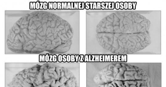 3 rodzaje mózgu